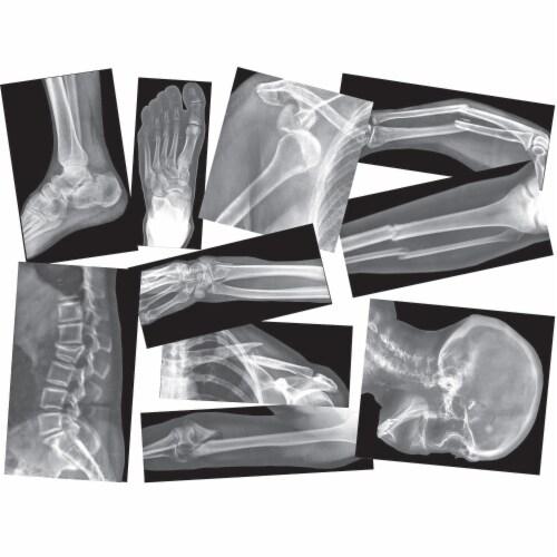 Roylco Broken Bones X-Ray Set Perspective: front
