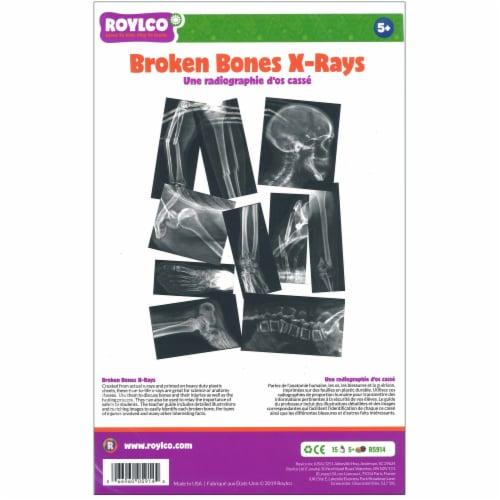 Roylco Broken Bones X-Ray Set Perspective: top